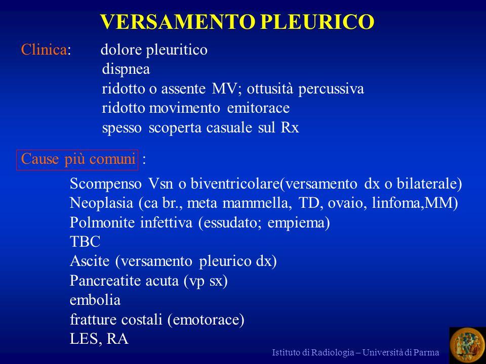 Istituto di Radiologia – Università di Parma 1)Rx torace: esame iniziale.