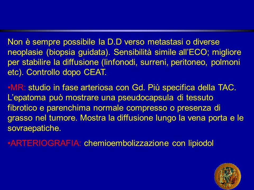 Non è sempre possibile la D.D verso metastasi o diverse neoplasie (biopsia guidata).