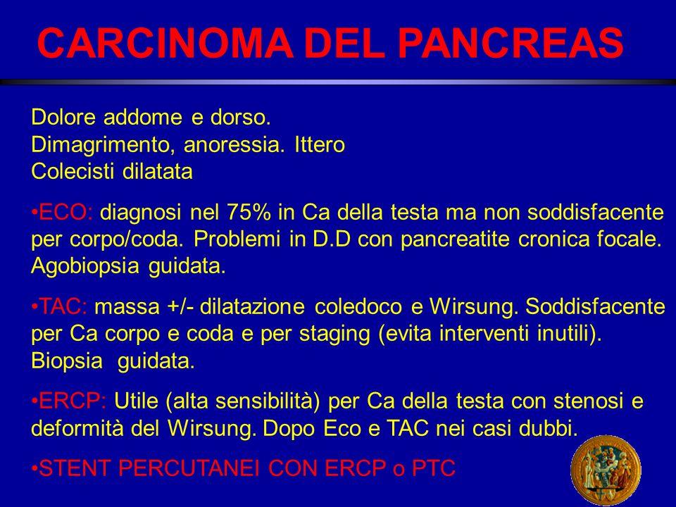 CARCINOMA DEL PANCREAS Dolore addome e dorso.Dimagrimento, anoressia.
