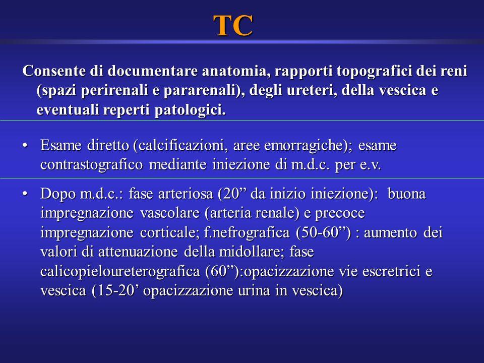 TC Consente di documentare anatomia, rapporti topografici dei reni (spazi perirenali e pararenali), degli ureteri, della vescica e eventuali reperti p