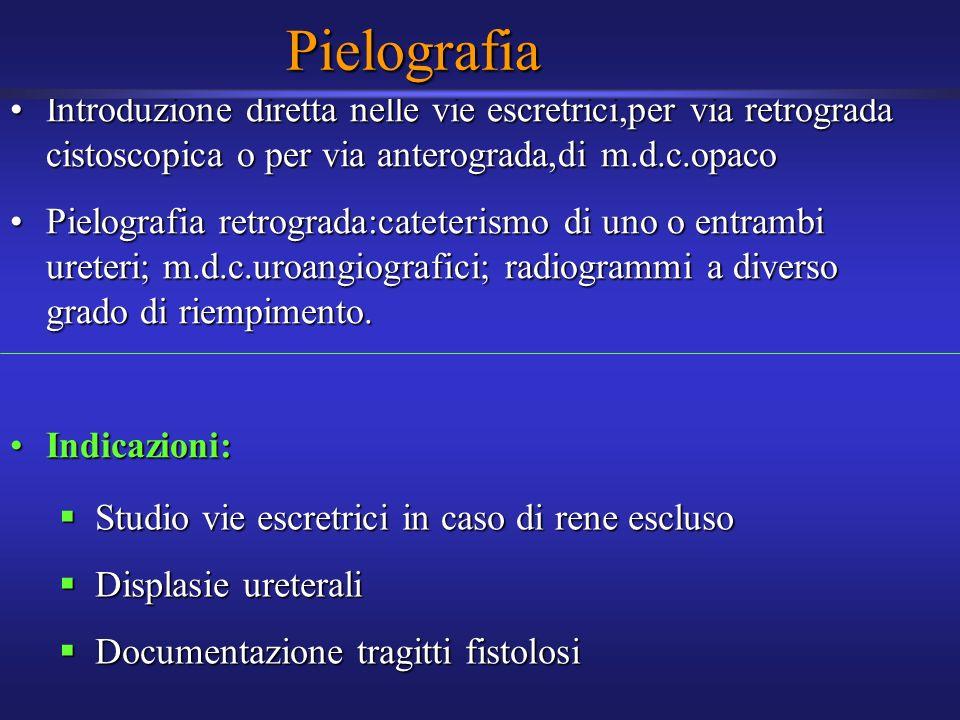Pielografia Introduzione diretta nelle vie escretrici,per via retrograda cistoscopica o per via anterograda,di m.d.c.opacoIntroduzione diretta nelle v