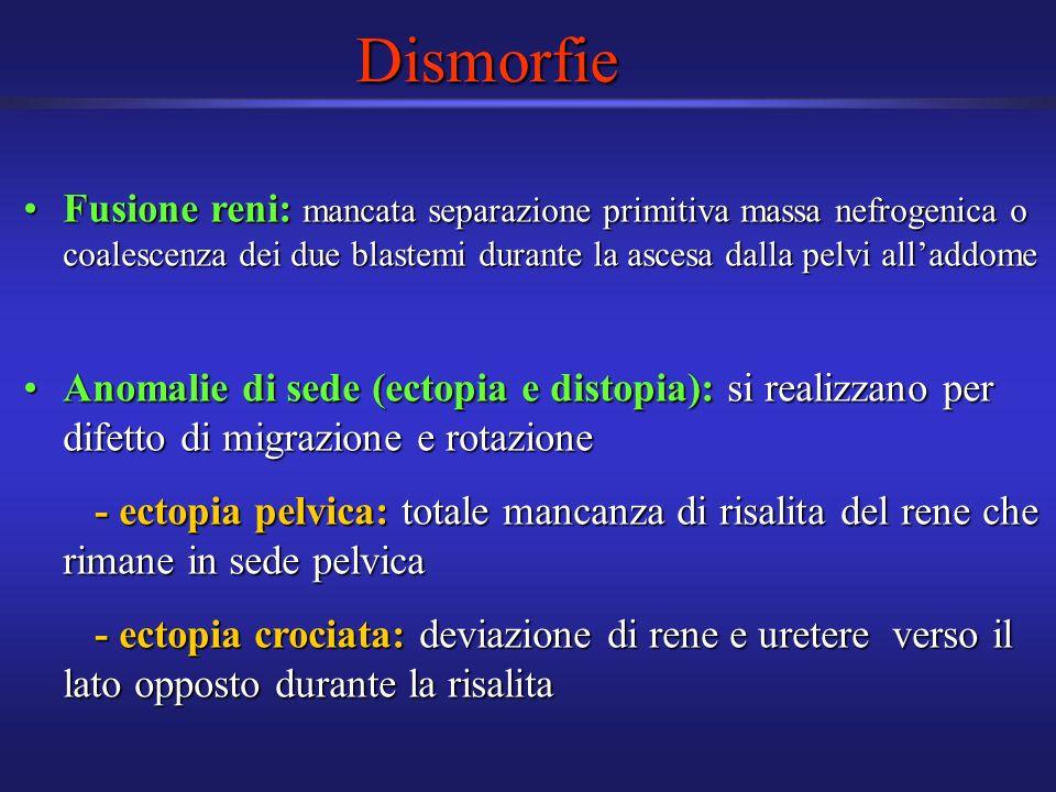 Dismorfie Fusione reni: mancata separazione primitiva massa nefrogenica o coalescenza dei due blastemi durante la ascesa dalla pelvi alladdomeFusione