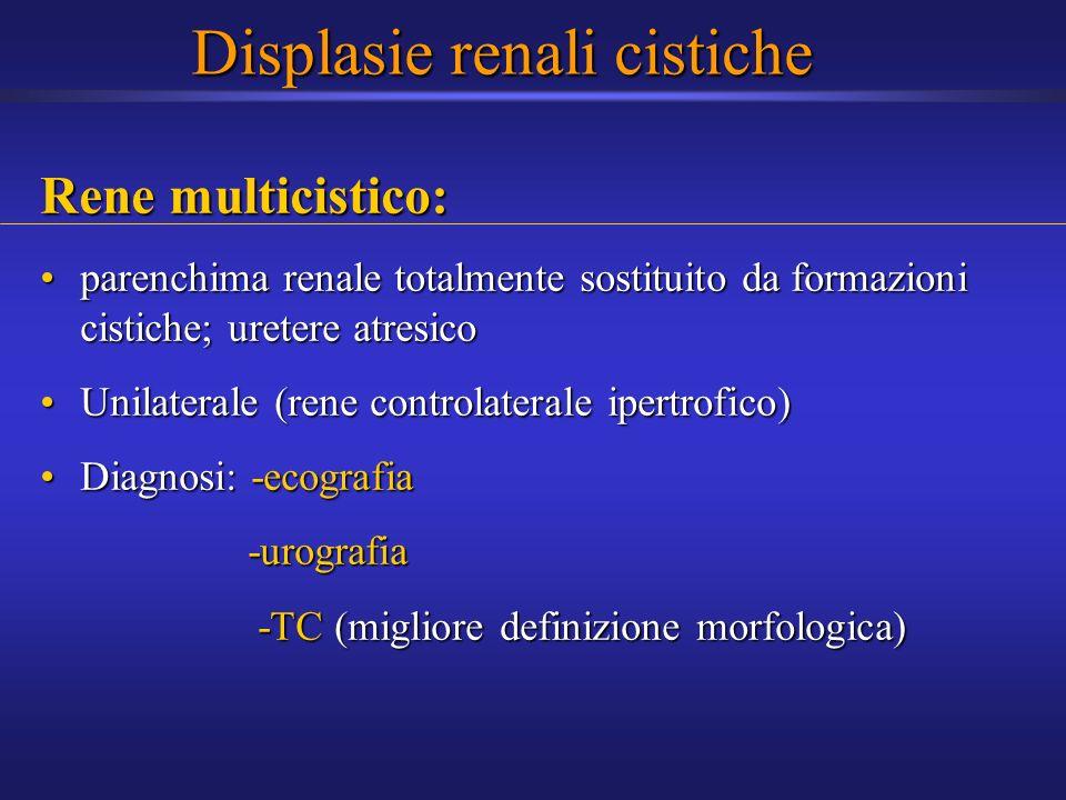 Displasie renali cistiche Rene multicistico: parenchima renale totalmente sostituito da formazioni cistiche; uretere atresicoparenchima renale totalme