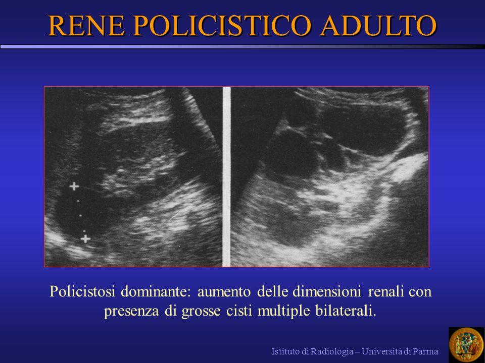 Istituto di Radiologia – Università di Parma RENE POLICISTICO ADULTO Policistosi dominante: aumento delle dimensioni renali con presenza di grosse cis