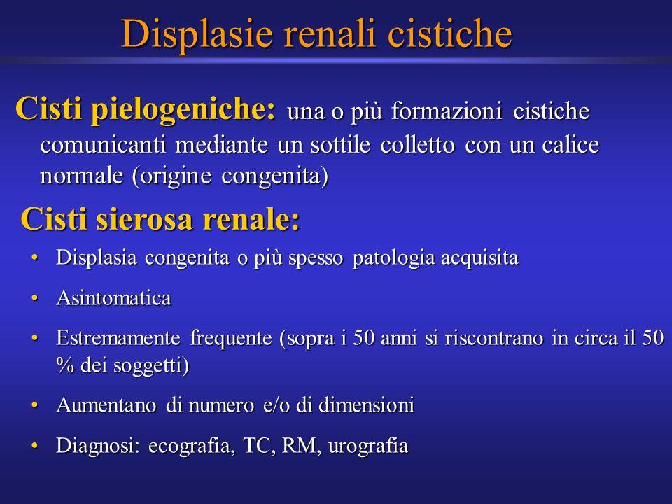 Displasie renali cistiche Cisti pielogeniche: una o più formazioni cistiche comunicanti mediante un sottile colletto con un calice normale (origine co