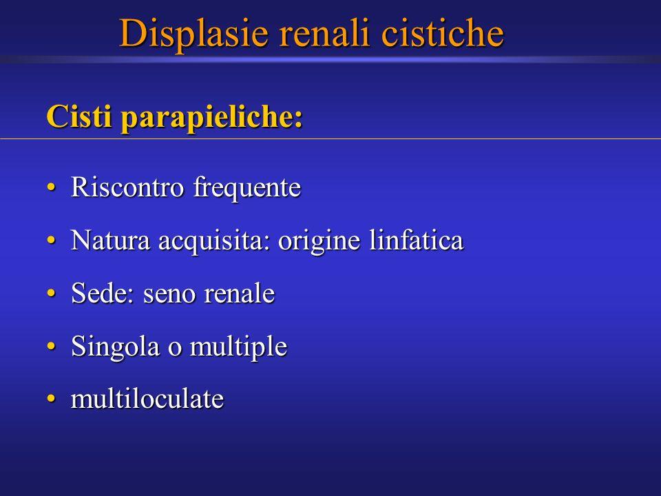 Cisti parapieliche: Riscontro frequenteRiscontro frequente Natura acquisita: origine linfaticaNatura acquisita: origine linfatica Sede: seno renaleSed
