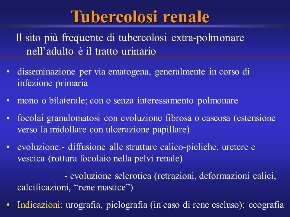 Tubercolosi renale Il sito più frequente di tubercolosi extra-polmonare nelladulto è il tratto urinario disseminazione per via ematogena, generalmente