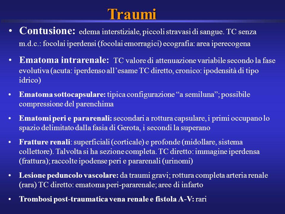 Traumi Contusione: edema interstiziale, piccoli stravasi di sangue. TC senza m.d.c.: focolai iperdensi (focolai emorragici) ecografia: area iperecogen
