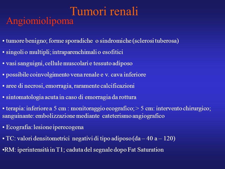 Tumori renali Angiomiolipoma tumore benigno; forme sporadiche o sindromiche (sclerosi tuberosa) singoli o multipli; intraparenchimali o esofitici vasi