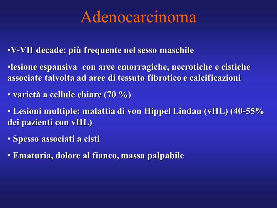 Adenocarcinoma V-VII decade; più frequente nel sesso maschileV-VII decade; più frequente nel sesso maschile lesione espansiva con aree emorragiche, ne
