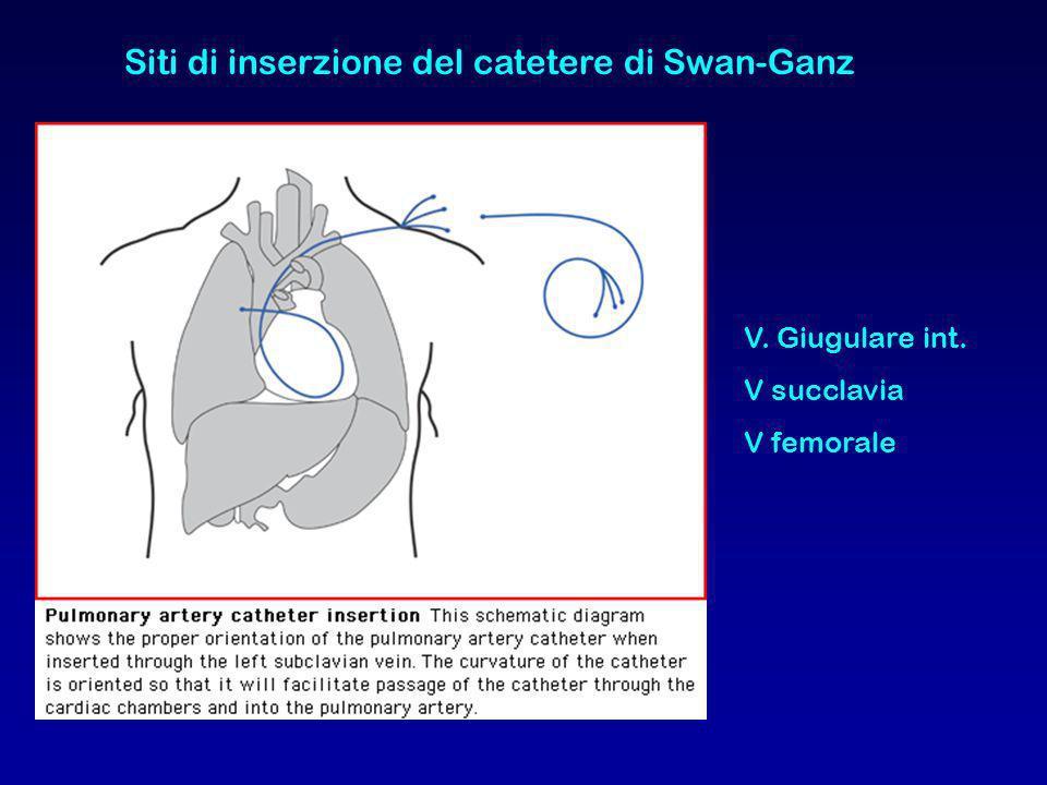 Siti di inserzione del catetere di Swan-Ganz V. Giugulare int. V succlavia V femorale