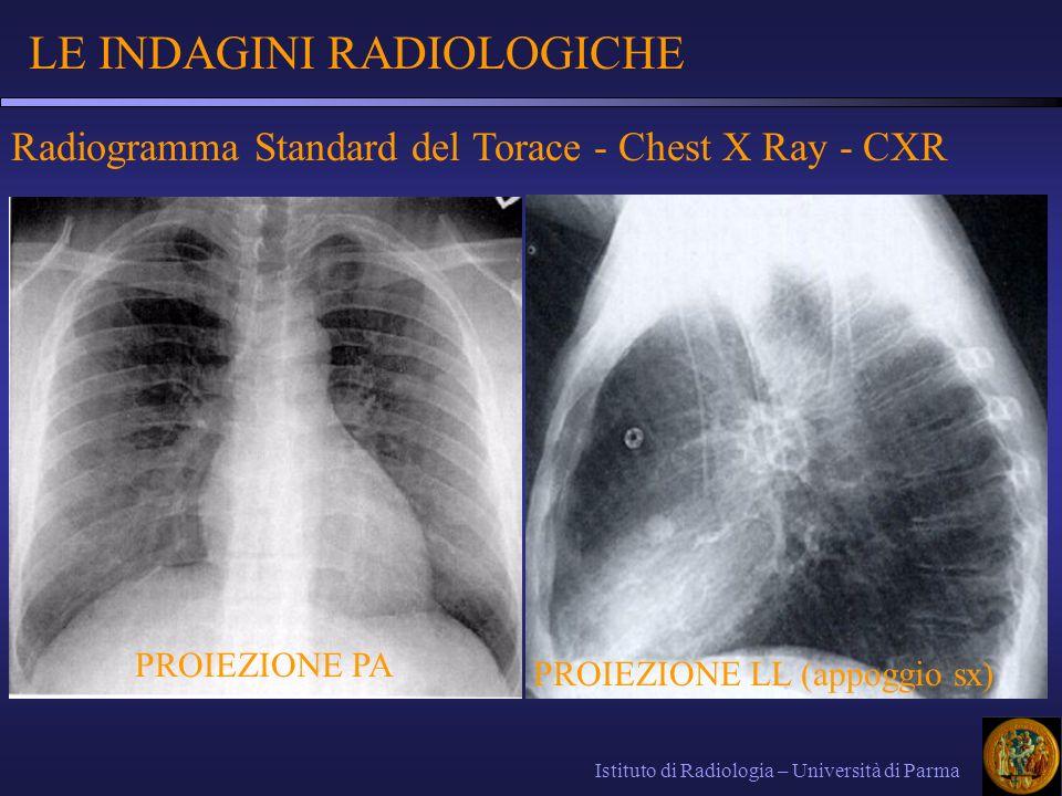 CARDIOPATIA ISCHEMICA Ischemia acuta (IMA): Ecocardiografia: zona ipo-acineticaEcocardiografia: zona ipo-acinetica RM: area di aumento del segnale nelle sequenze STIRRM: area di aumento del segnale nelle sequenze STIR Scintigrafia miocardica con indicatore positivo (Tc-99m-pirofosfato): precipita sotto forma di complessi di calcio a livello della zona necrotica area caldaScintigrafia miocardica con indicatore positivo (Tc-99m-pirofosfato): precipita sotto forma di complessi di calcio a livello della zona necrotica area calda