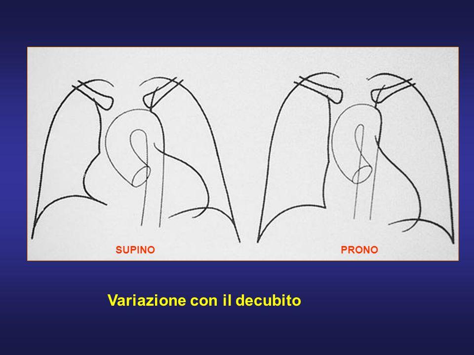 PERICARDITI FORME ACUTE ESSUDATIVEFORME ACUTE ESSUDATIVERX: - configurazione a fiasca dellombra cardiaca in ortostatismo; in clinostatismo slargamento del peduncolo vasale -Arco superiore destro è prominente per la dilatazione vena cava superiore -Angoli cardio-frenici divengono ottusi Ecocardiografia: evidenzia versamenti pericardici anche di piccole dimensioni TC-RM: ispessimenti pericardici, versamenti FORME CRONICHE COSTRITTIVE: stasi del piccolo e grande circolo, calcificazioni pericardiche (TC).FORME CRONICHE COSTRITTIVE: stasi del piccolo e grande circolo, calcificazioni pericardiche (TC).