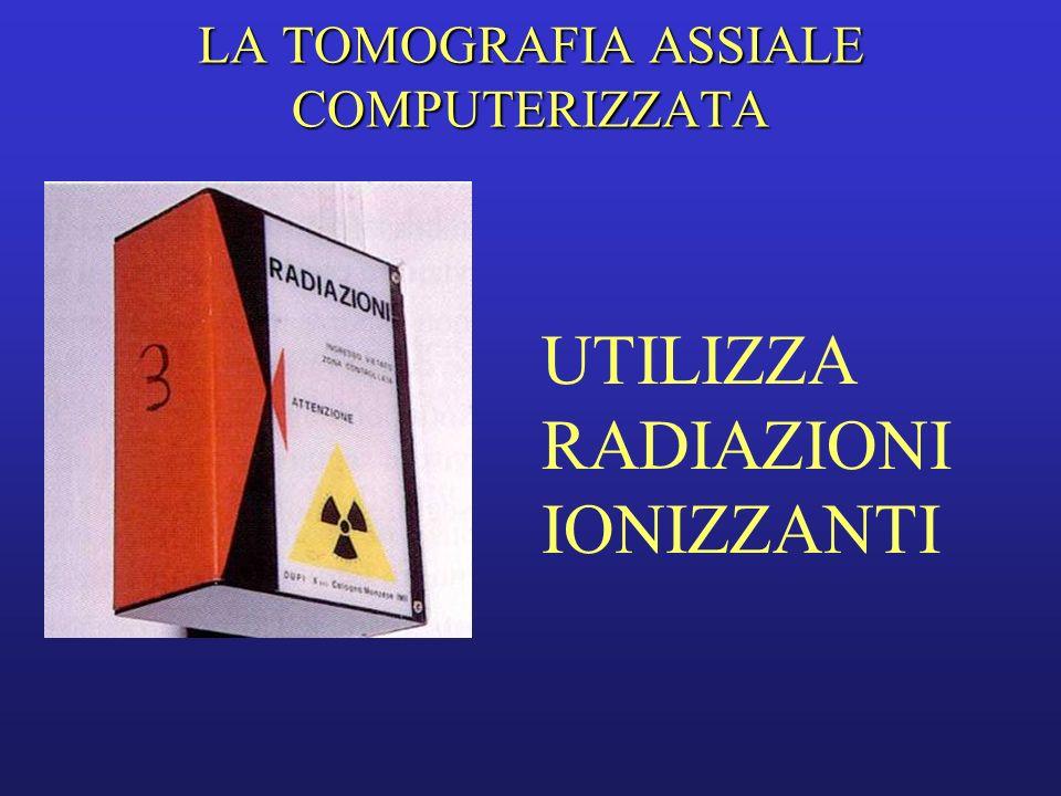 TC La TC si basa sulla rilevazione del fascio di raggi X attenuato mediante un sistema di detettori che ne traduce lintensità in un segnale elettrico di corrispondente valore