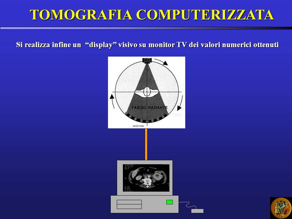SCALA HOUNSFIELD Non essendo possibile analizzare il corpo umano guardando un tabulato di numeri, è stato necessario rappresentare ciascun valore di densità dei voxels in corrispondenti tonalità di grigio riprodotte sul monitor del computer