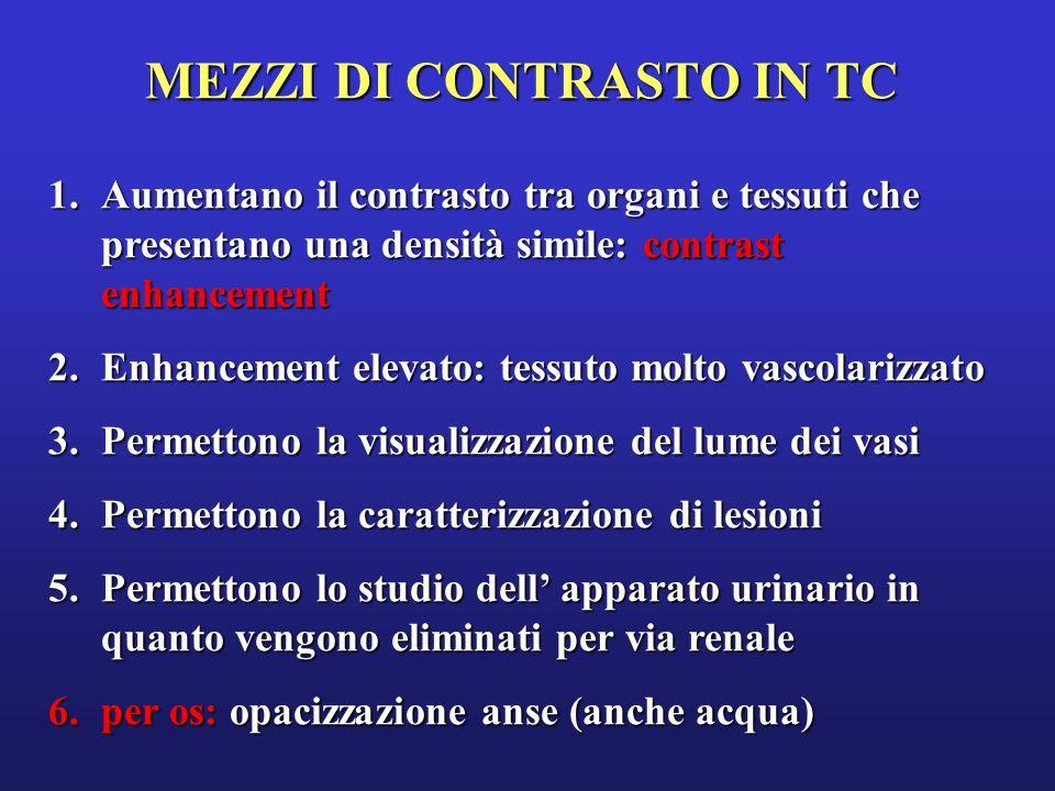 ROTTURA DI ANEURISMA DISSECANTE DELLAORTA DISCENDENTE MEZZO DI CONTRASTO IN TC Senza contrasto Dopo contrasto