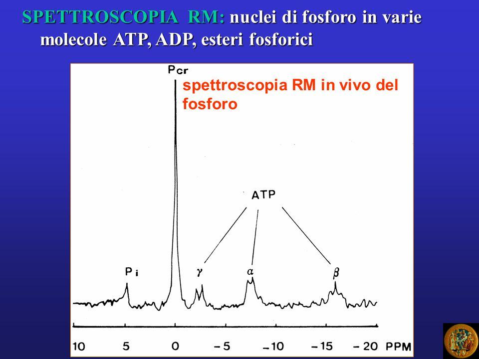 spettroscopia RM in vivo del fosforo SPETTROSCOPIA RM: nuclei di fosforo in varie molecole ATP, ADP, esteri fosforici