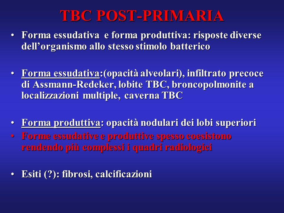 TBC POST-PRIMARIA Forma essudativa e forma produttiva: risposte diverse dellorganismo allo stesso stimolo battericoForma essudativa e forma produttiva