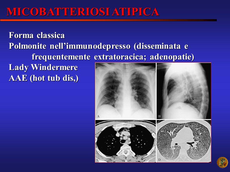 Forma classica Polmonite nellimmunodepresso (disseminata e frequentemente extratoracica; adenopatie) Lady Windermere AAE (hot tub dis,) MICOBATTERIOSI