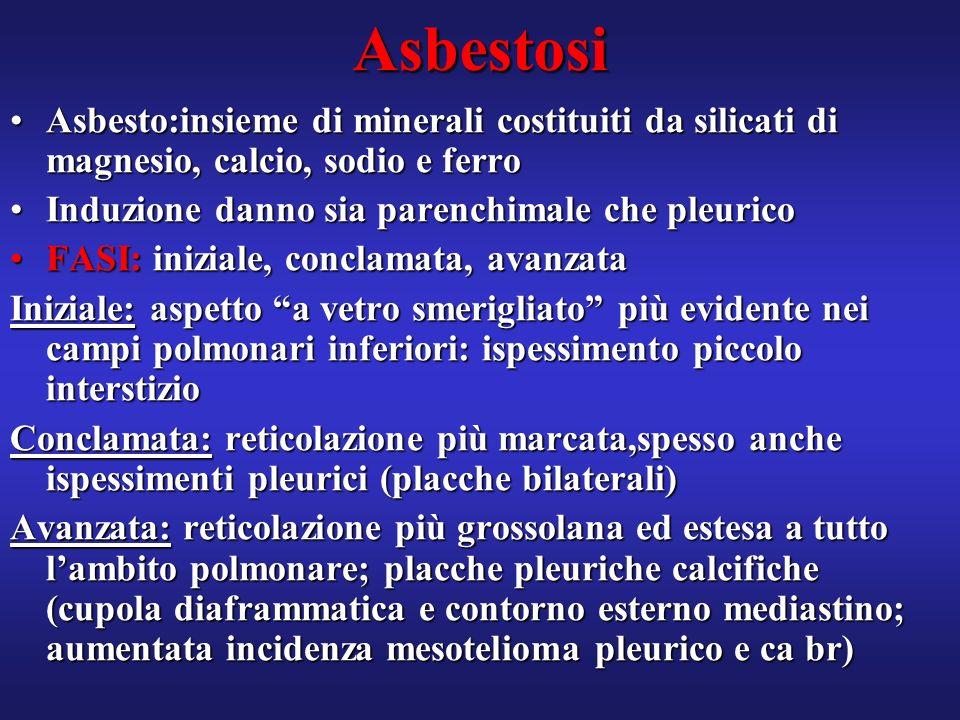 Asbestosi Asbesto:insieme di minerali costituiti da silicati di magnesio, calcio, sodio e ferroAsbesto:insieme di minerali costituiti da silicati di m
