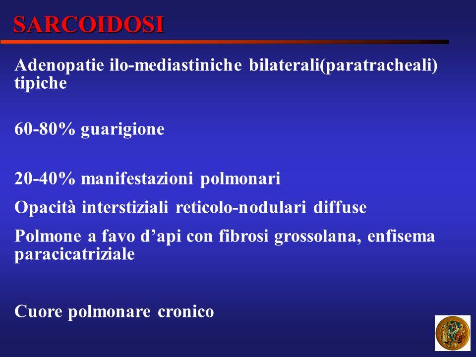 SARCOIDOSI Adenopatie ilo-mediastiniche bilaterali(paratracheali) tipiche 60-80% guarigione 20-40% manifestazioni polmonari Opacità interstiziali reti