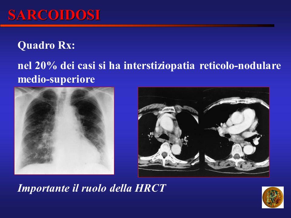 SARCOIDOSI Quadro Rx: nel 20% dei casi si ha interstiziopatia reticolo-nodulare medio-superiore Importante il ruolo della HRCT