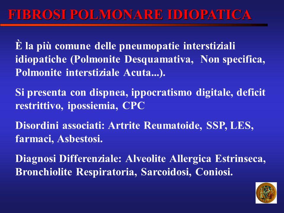 FIBROSI POLMONARE IDIOPATICA È la più comune delle pneumopatie interstiziali idiopatiche (Polmonite Desquamativa, Non specifica, Polmonite interstizia