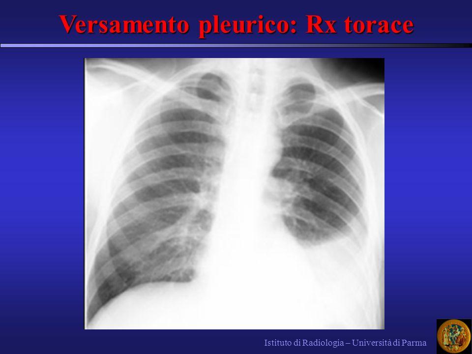 Istituto di Radiologia – Università di Parma Versamento pleurico: Rx torace