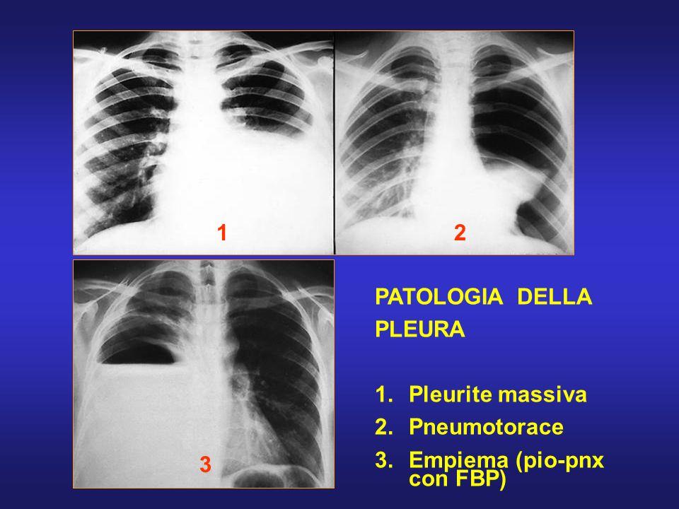 1 3 2 PATOLOGIA DELLA PLEURA 1. 1.Pleurite massiva 2. 2.Pneumotorace 3. 3.Empiema (pio-pnx con FBP)
