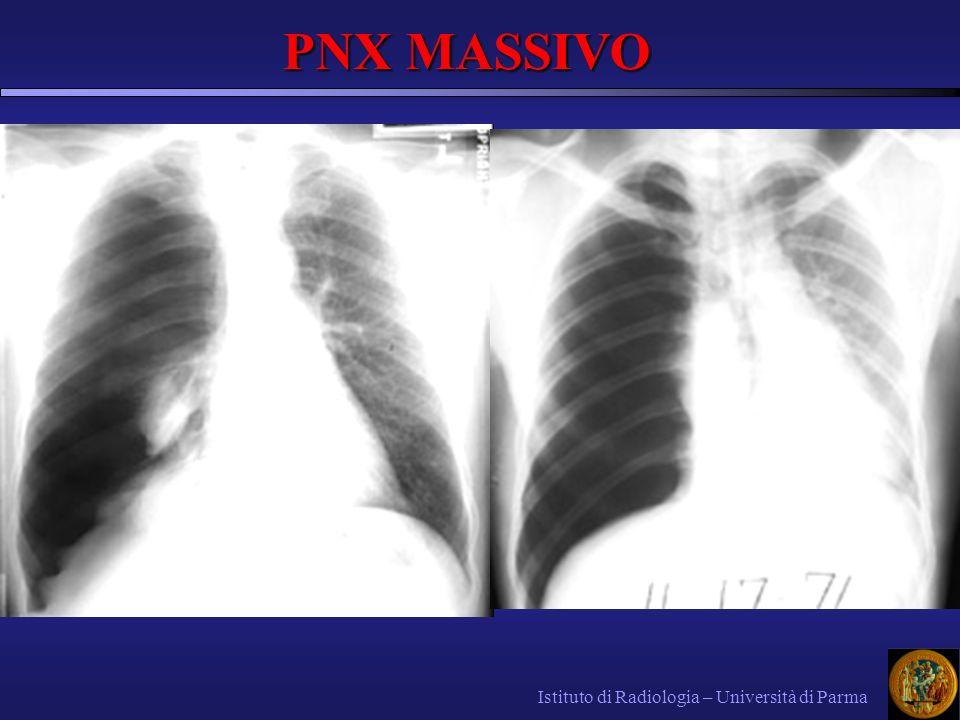 Istituto di Radiologia – Università di Parma PNX MASSIVO