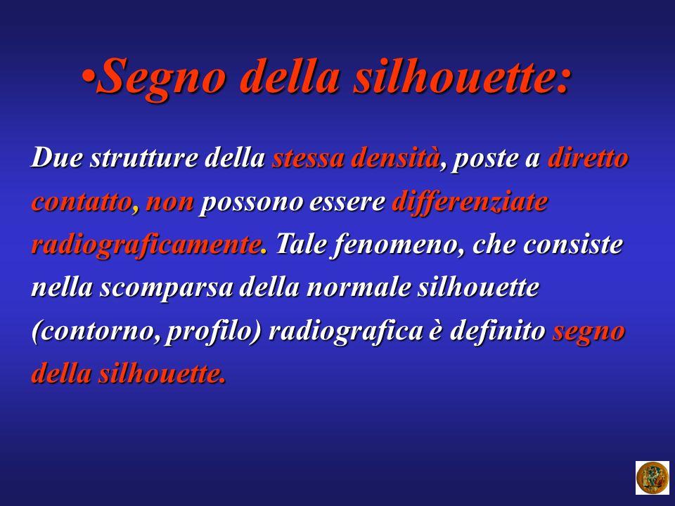 Segno della silhouette:Segno della silhouette: Due strutture della stessa densità, poste a diretto contatto, non possono essere differenziate radiogra