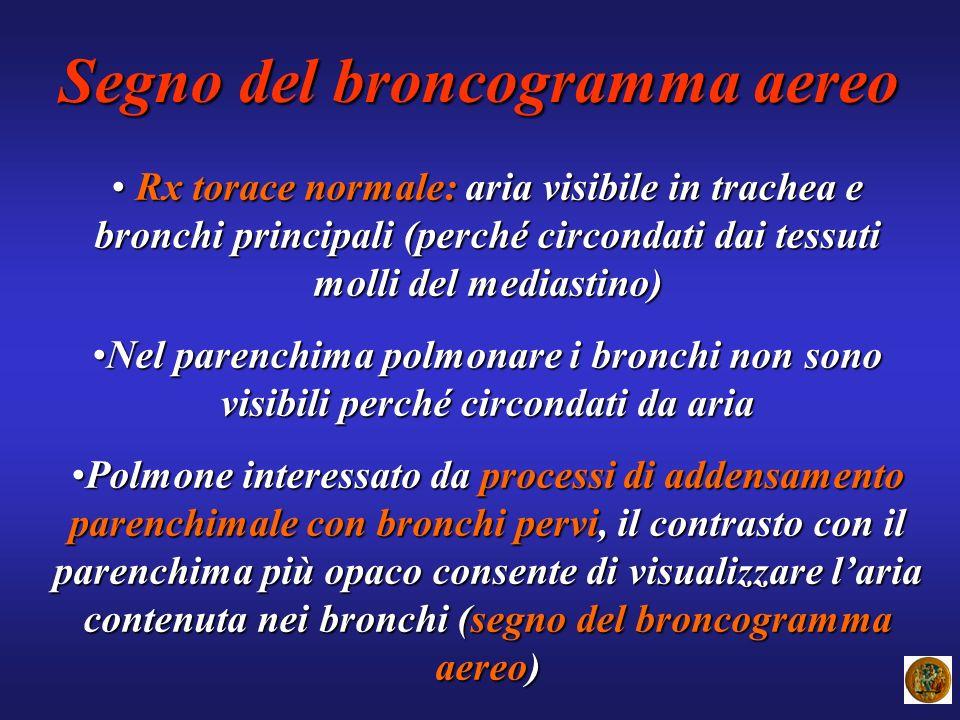 Segno del broncogramma aereo Rx torace normale: aria visibile in trachea e bronchi principali (perché circondati dai tessuti molli del mediastino) Rx