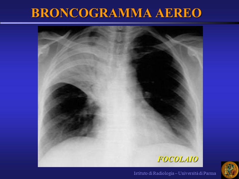 BRONCOGRAMMA AEREO Istituto di Radiologia – Università di Parma FOCOLAIO