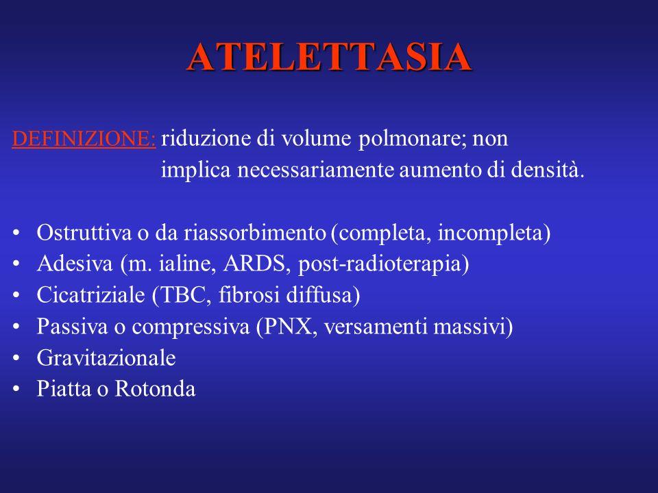 ATELETTASIA DEFINIZIONE: riduzione di volume polmonare; non implica necessariamente aumento di densità. Ostruttiva o da riassorbimento (completa, inco