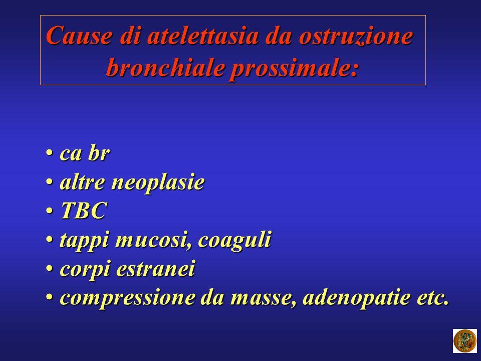 Cause di atelettasia da ostruzione bronchiale prossimale: ca br ca br altre neoplasie altre neoplasie TBC TBC tappi mucosi, coaguli tappi mucosi, coag
