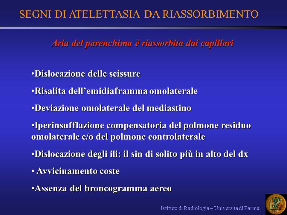 SEGNI DI ATELETTASIA DA RIASSORBIMENTO Istituto di Radiologia – Università di Parma Dislocazione delle scissureDislocazione delle scissure Risalita de