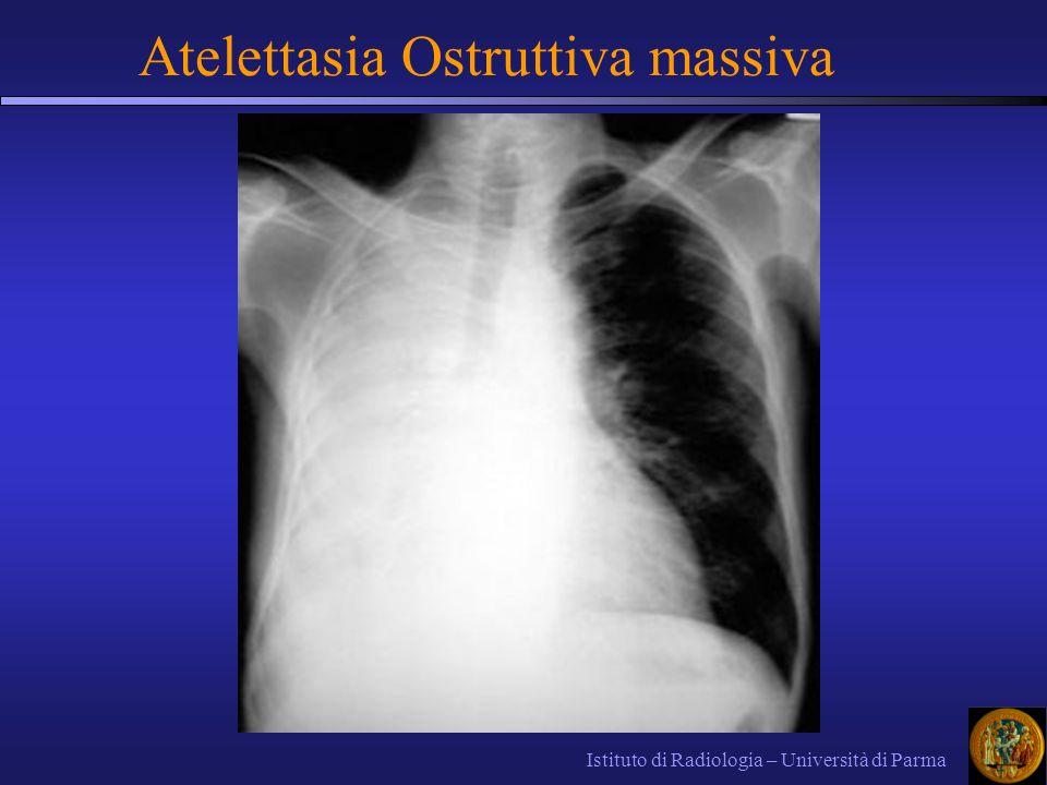 Istituto di Radiologia – Università di Parma Atelettasia Ostruttiva massiva