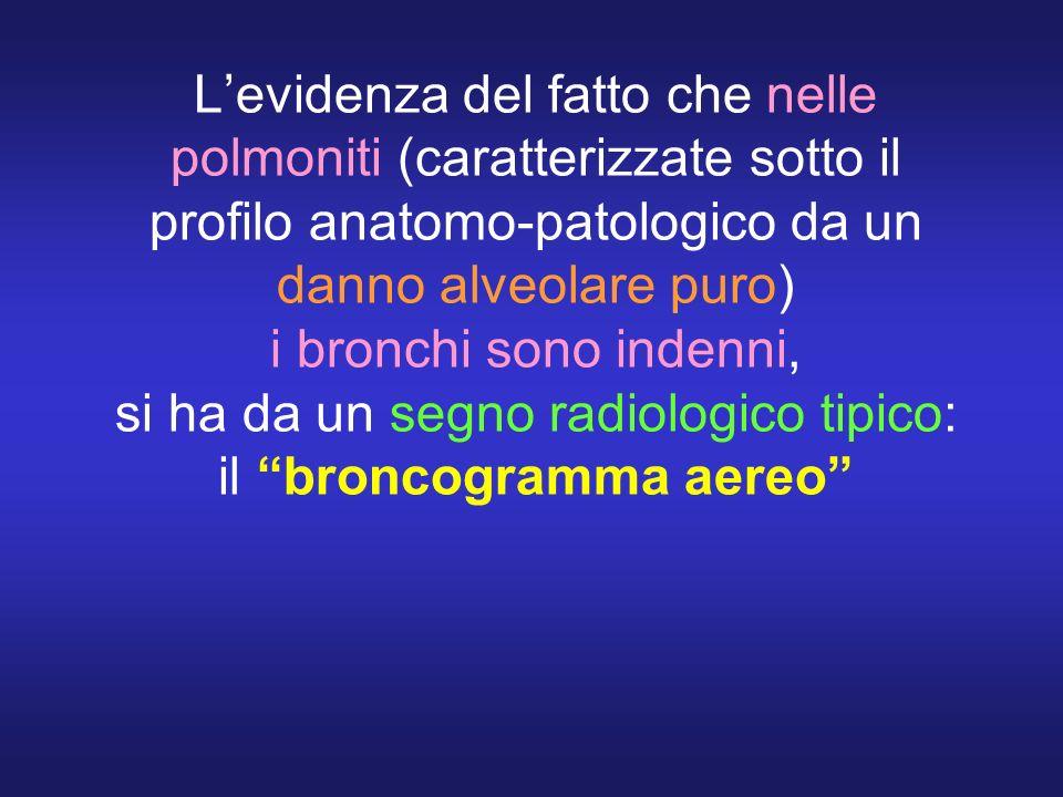 Levidenza del fatto che nelle polmoniti (caratterizzate sotto il profilo anatomo-patologico da un danno alveolare puro) i bronchi sono indenni, si ha