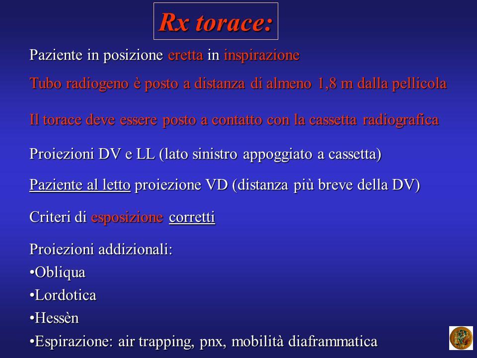 Rx torace: Paziente in posizione eretta in inspirazione Tubo radiogeno è posto a distanza di almeno 1,8 m dalla pellicola Il torace deve essere posto