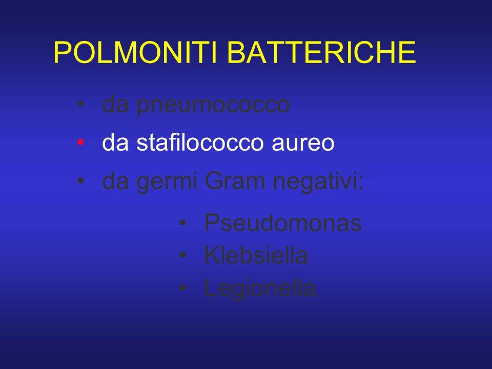 POLMONITI BATTERICHE da pneumococco da stafilococco aureo da germi Gram negativi: Pseudomonas Klebsiella Legionella