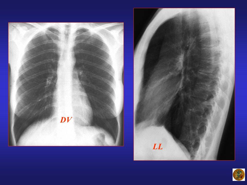 ENFISEMA CENTROLOBULARE 90 % dei casi 90 % dei casi FumatoriFumatori Danno centrolobulare: spazio correlato al bronchiolo respiratorioDanno centrolobulare: spazio correlato al bronchiolo respiratorio Comporta un severo danno funzionale Comporta un severo danno funzionale