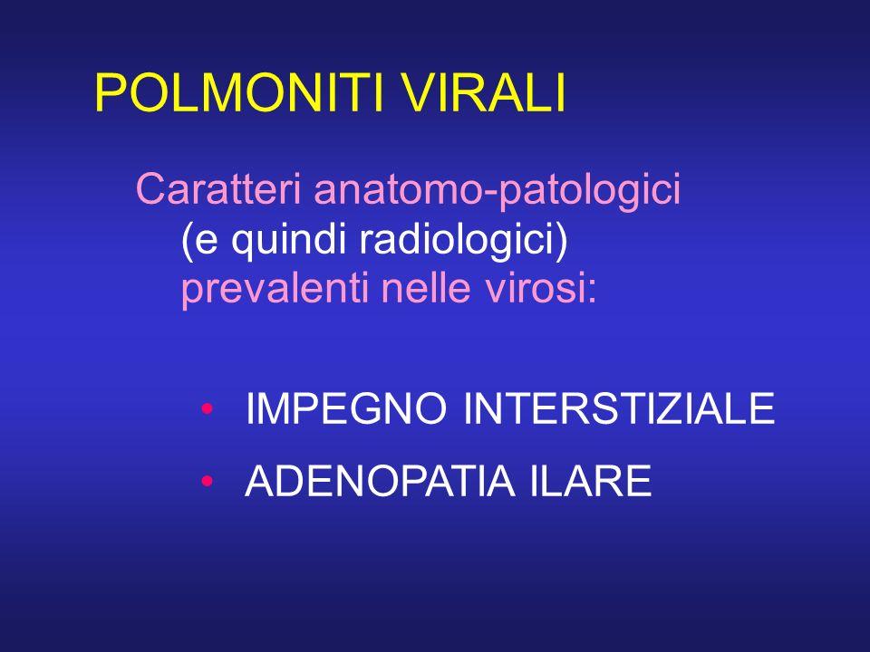POLMONITI VIRALI Caratteri anatomo-patologici (e quindi radiologici) prevalenti nelle virosi: IMPEGNO INTERSTIZIALE ADENOPATIA ILARE