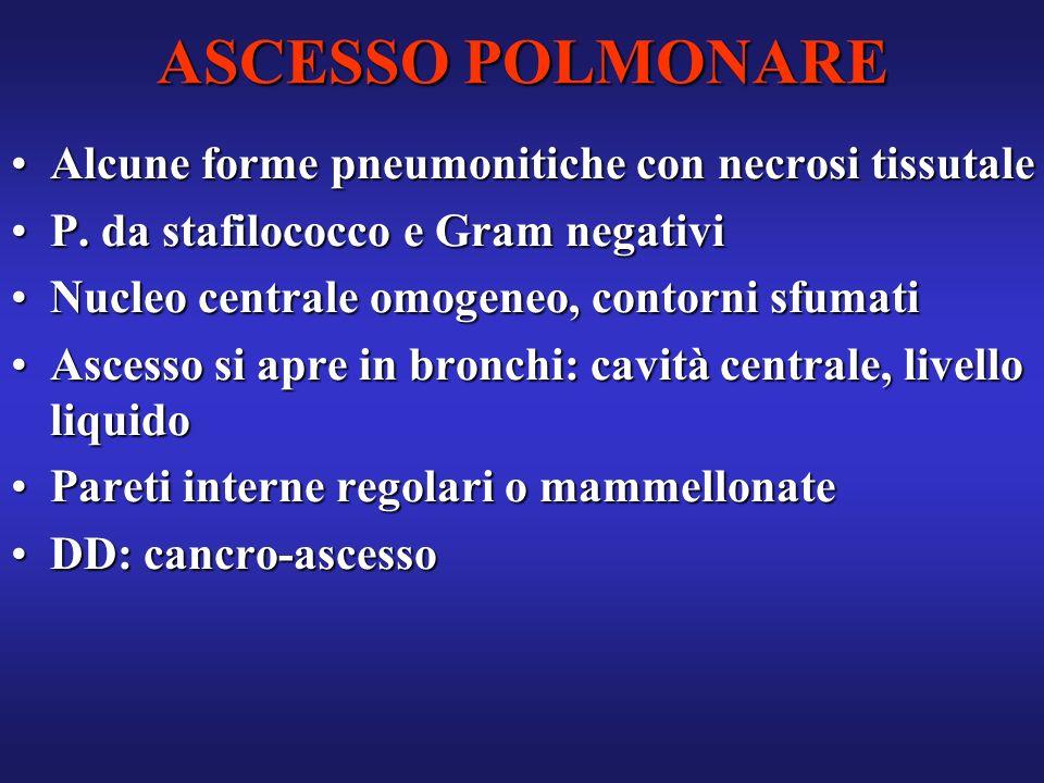 ASCESSO POLMONARE Alcune forme pneumonitiche con necrosi tissutaleAlcune forme pneumonitiche con necrosi tissutale P. da stafilococco e Gram negativiP