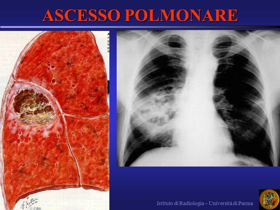 Istituto di Radiologia – Università di Parma ASCESSO POLMONARE