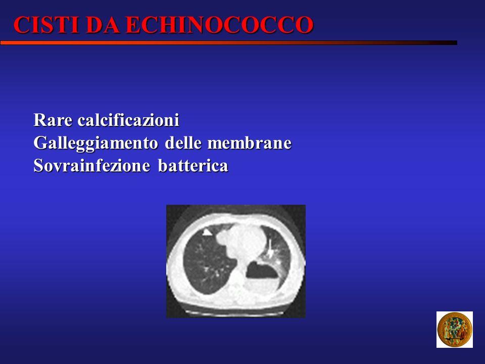 Rare calcificazioni Galleggiamento delle membrane Sovrainfezione batterica CISTI DA ECHINOCOCCO