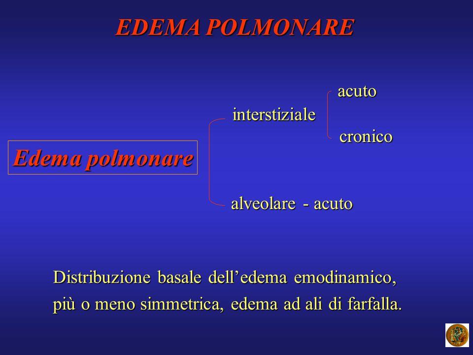 Edema polmonare interstiziale alveolare - acuto acuto cronico Distribuzione basale delledema emodinamico, più o meno simmetrica, edema ad ali di farfa