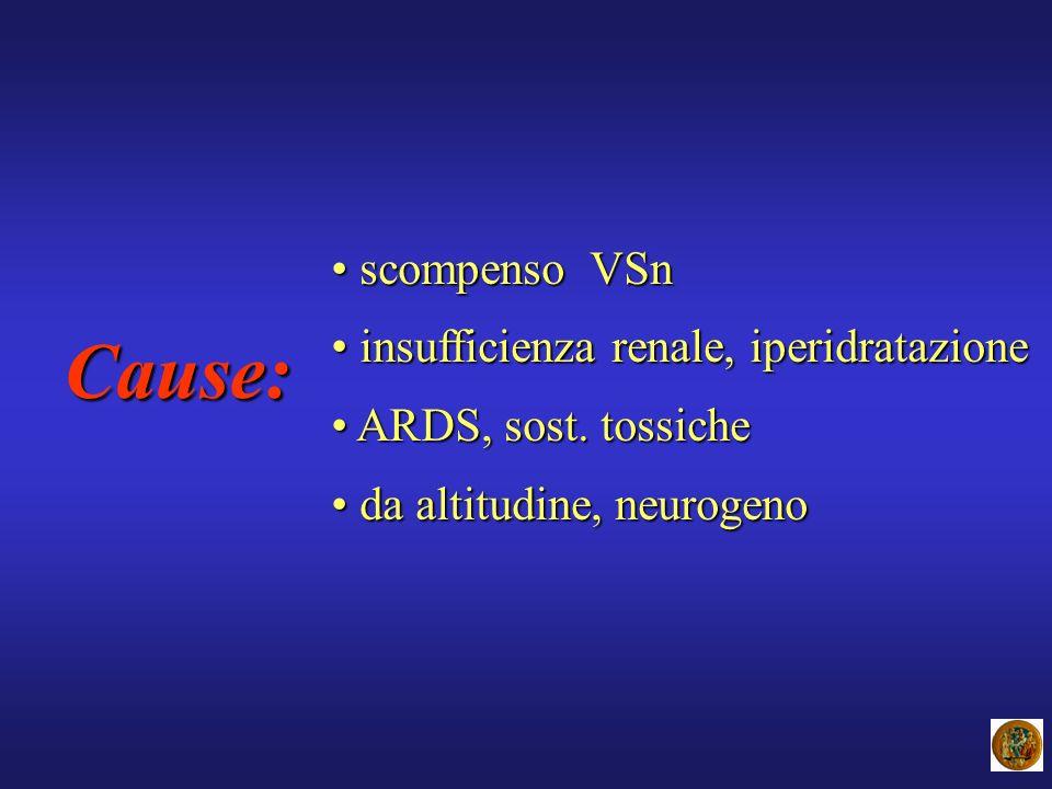 Cause: scompenso VSn scompenso VSn insufficienza renale, iperidratazione insufficienza renale, iperidratazione ARDS, sost. tossiche ARDS, sost. tossic