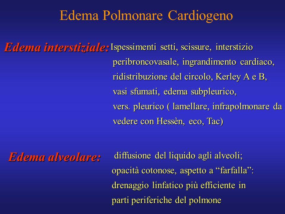 Edema interstiziale: Ispessimenti setti, scissure, interstizio peribroncovasale, ingrandimento cardiaco, peribroncovasale, ingrandimento cardiaco, rid