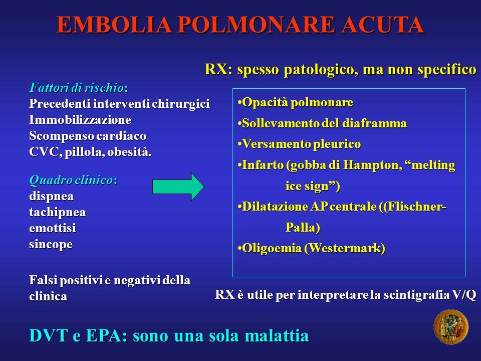 Quadro clinico: dispneatachipneaemottisisincope EMBOLIA POLMONARE ACUTA Falsi positivi e negativi della clinica DVT e EPA: sono una sola malattia RX: