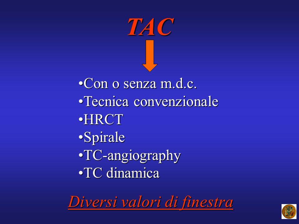 TAC Con o senza m.d.c.Con o senza m.d.c. Tecnica convenzionaleTecnica convenzionale HRCTHRCT SpiraleSpirale TC-angiographyTC-angiography TC dinamicaTC